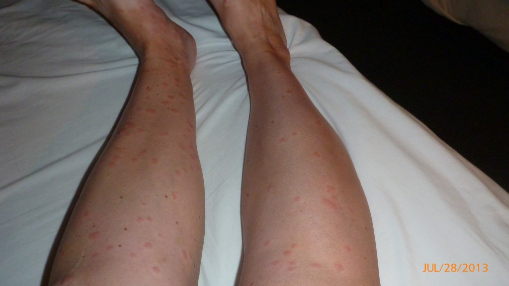 Apparently the mosquitos liked me at the campfire the previous night.  Sooo itchy today.  It pays to be popular.